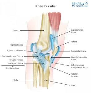 knee_bursitis