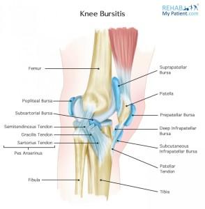 knee_bursitis